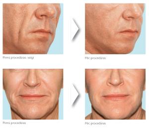 Выравнивание носа спб
