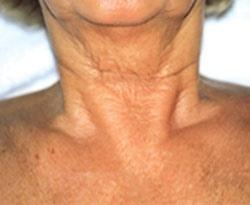 Лазерное омоложение шеи