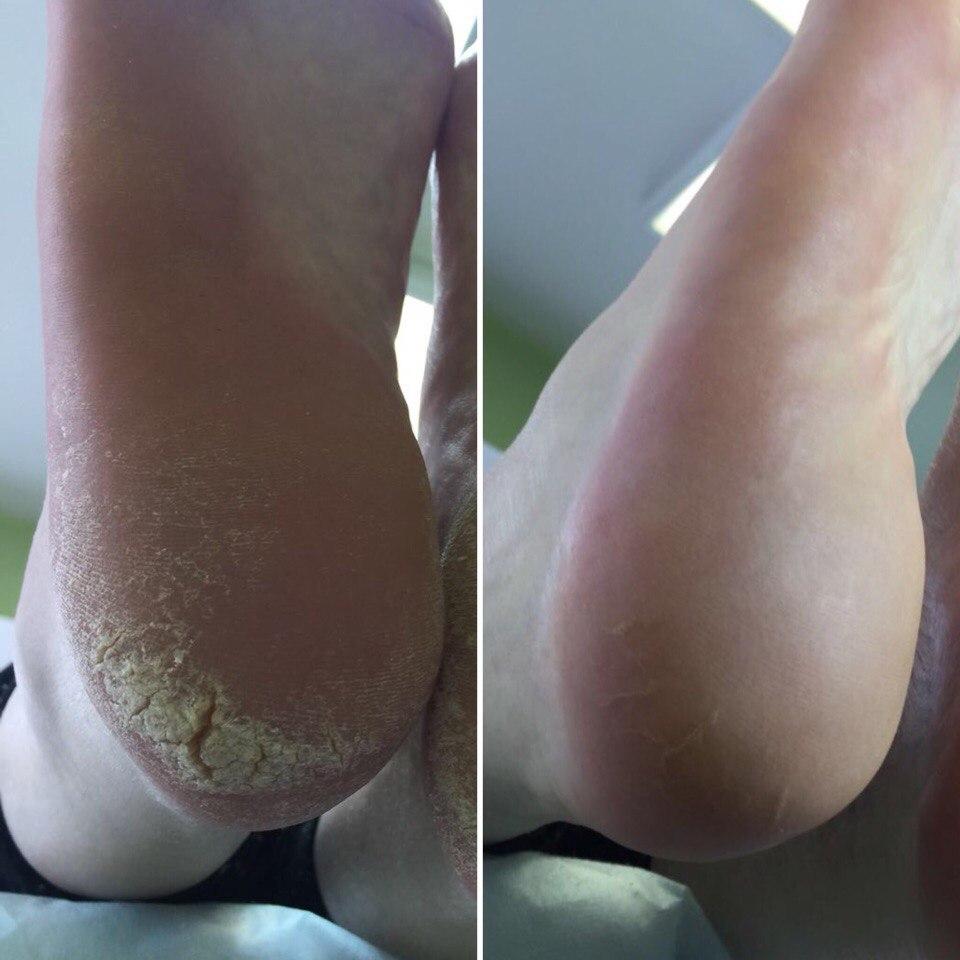 Аппаратное лечение ГРИБКА ногтей и стопы