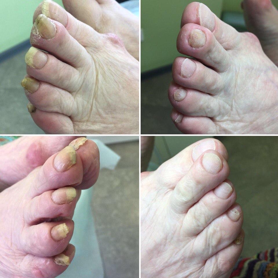 Аппаратное лечение ГРИБКА ногтей